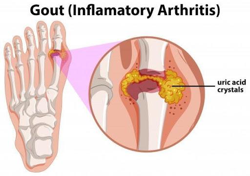 Gout - inflamatory arthritis