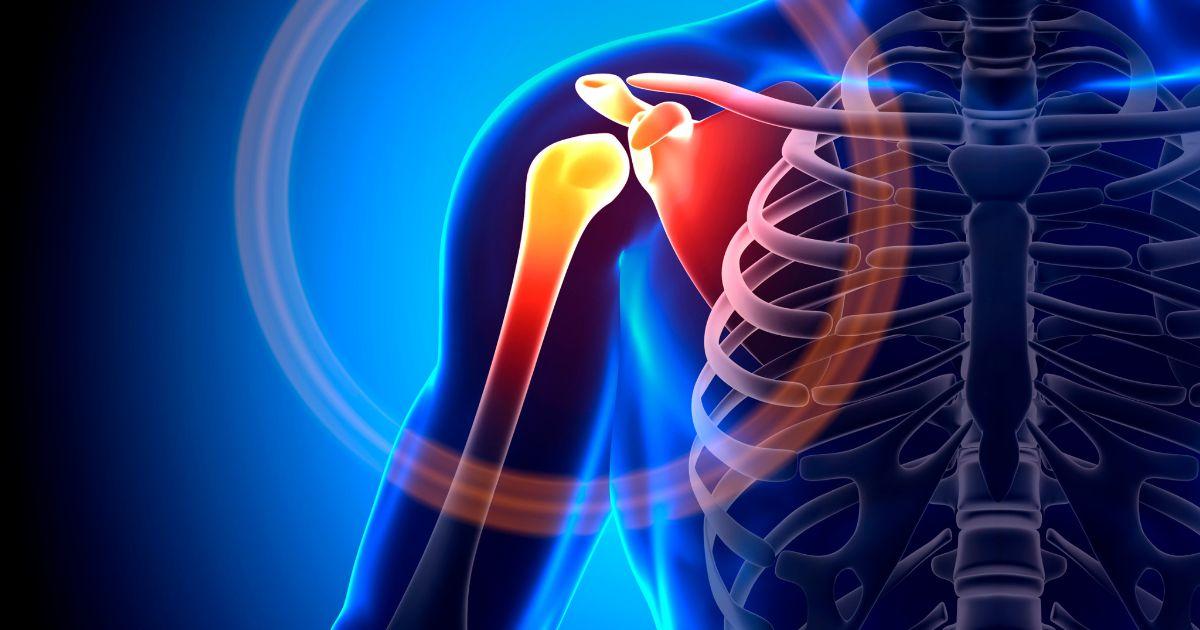 fibromyalgia-pain-avacen