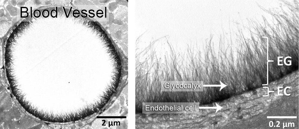 what is glycocalyx?
