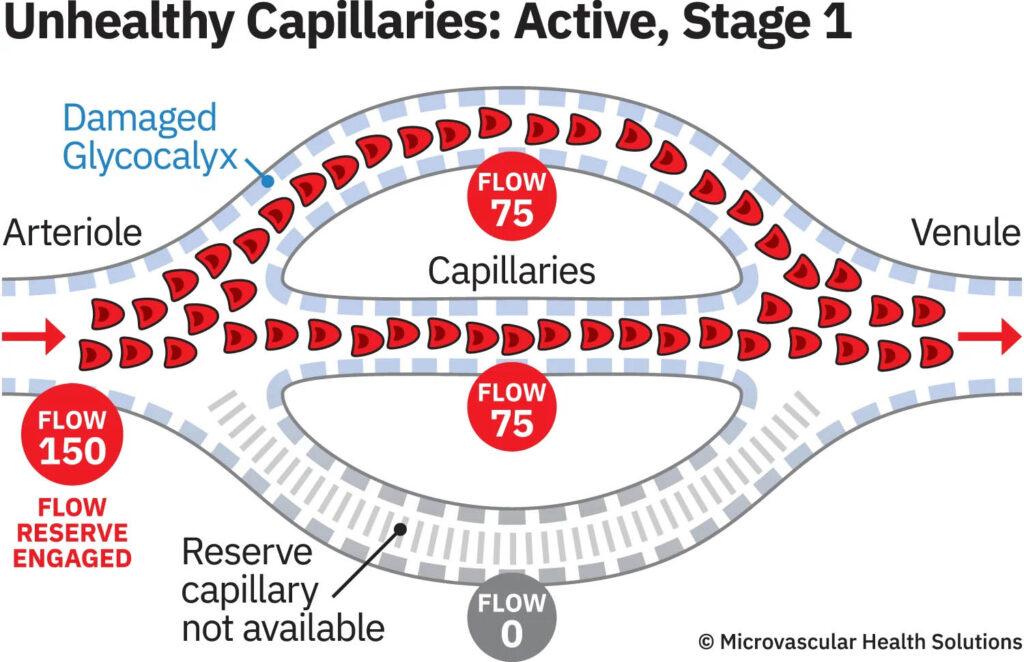unhealthy capillaries active