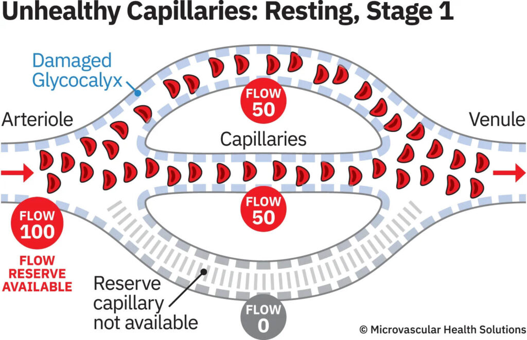 capillary-unhealthy-resting-stage1