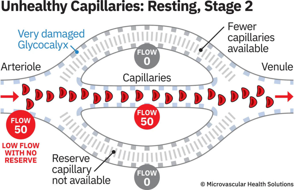 unhealthy capillaries resting